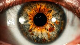 Worldcoin Part 2: Categorize Eyeballs
