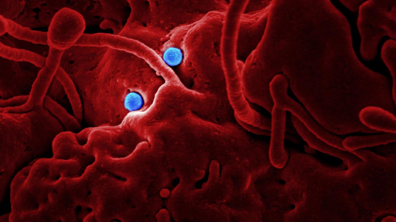 Will Epidemics drive an increase in Veganism?